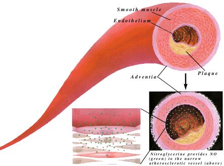 In this image you can see the mechanism of Nitroglycerine on a blood vessel