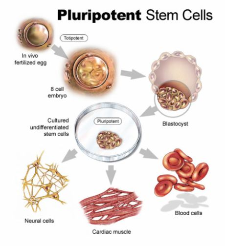 Stem cell in the Heart Attack treatment